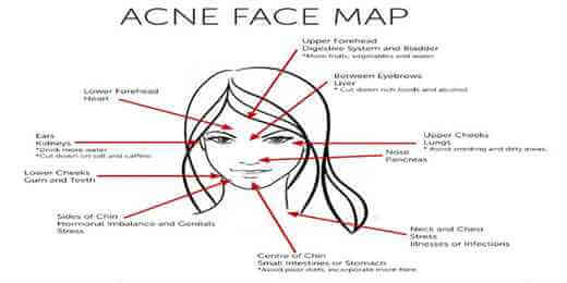 Acne Face Map – What Acne revealing about your Health